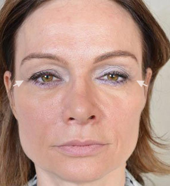 Blepharoplasty Procedure: Before Treatment Photo - female, front view, patient 10