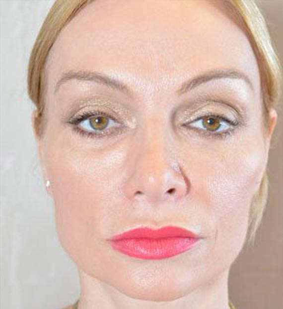 Blepharoplasty Procedure: After Treatment Photo - female, front view, patient 10