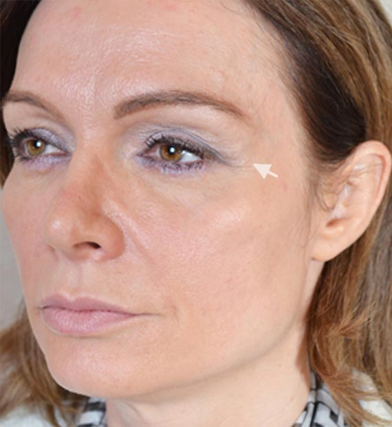 Blepharoplasty Procedure: Before Treatment Photo - female, oblique view, patient 10