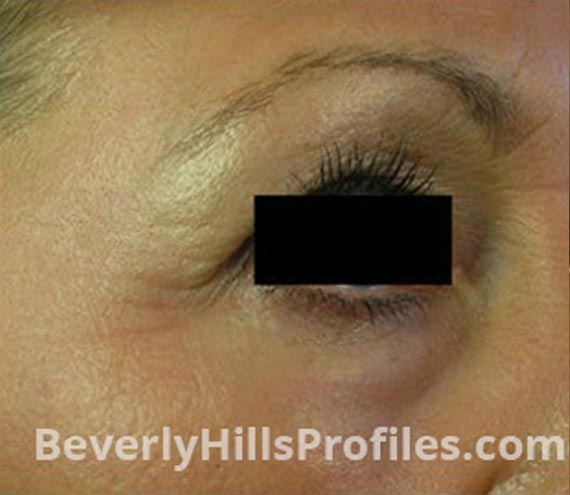 FaceLift, Botox - After Treatment Photo - female, right side oblique view, patient 3
