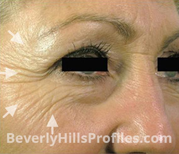 FaceLift, Botox: Before Treatment Photo - female, right side oblique view, patient 3
