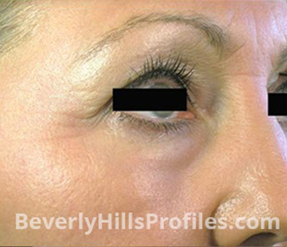 FaceLift, Botox: After Treatment Photo - female, right side oblique view, patient 3