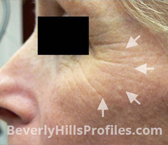 FaceLift, Botox - Before Treatment Photo - female, left side oblique view, patient 4
