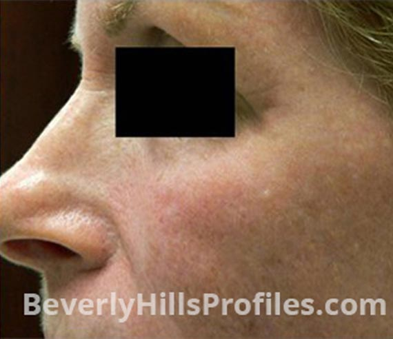 FaceLift, Botox - After Treatment Photo - female, left  side oblique view, patient 4