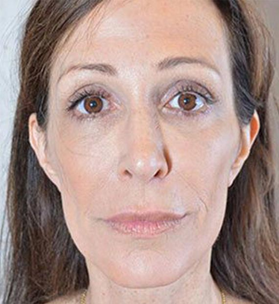 Brow lift - After Treatment Photo - female, front view, patient 1
