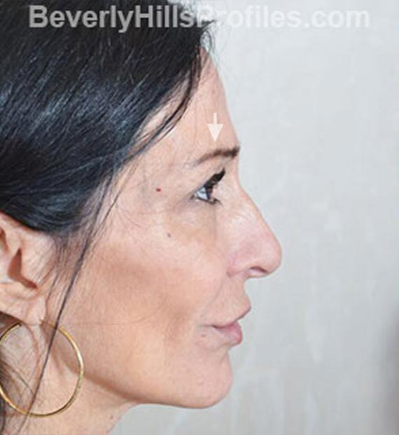 Brow lift - Before Treatment Photo - female, right side view, patient 1