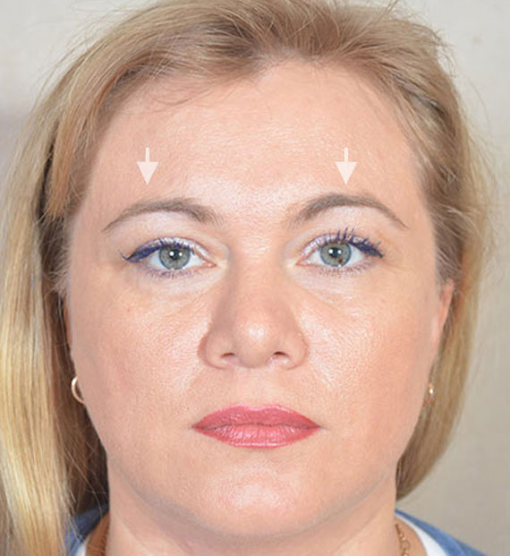 Brow lift - Before Treatment Photo - female, front view, patient 5
