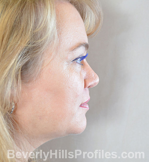 Brow lift - After Treatment Photo - female, right side view, patient 5