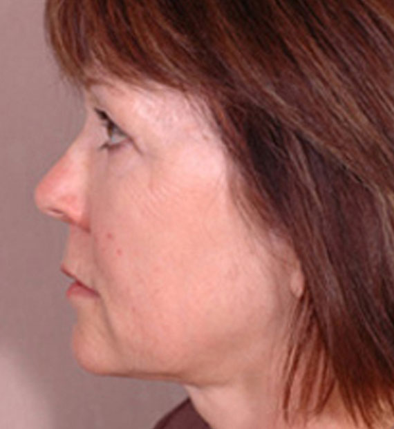 Brow lift - After Treatment Photo - female, left side view, patient 2