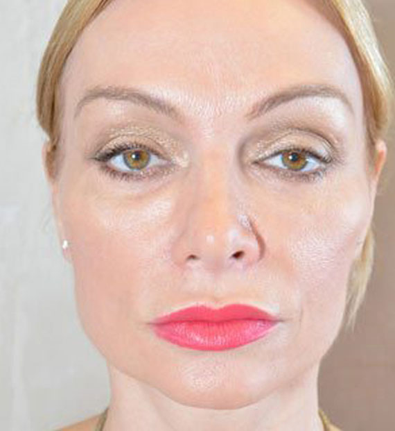 Brow lift - After Treatment Photo - female, front view, patient 3