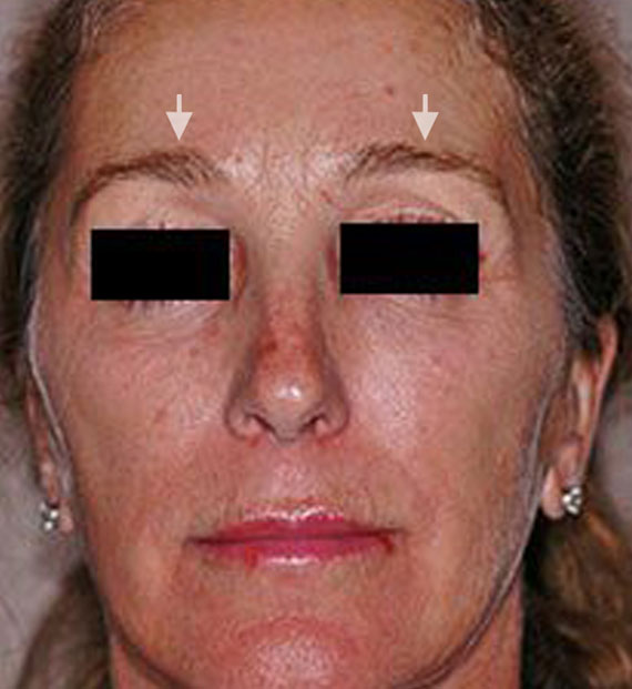 Brow lift - Before Treatment Photo - female, front view, patient 4