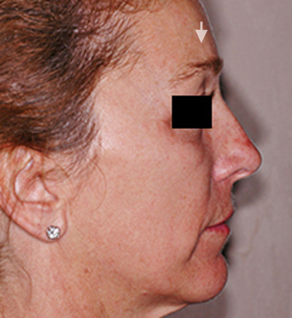 Brow lift - Before Treatment Photo - female, right side view, patient 4