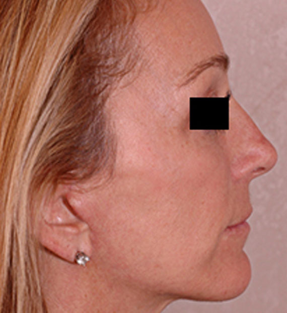 Brow lift - After Treatment Photo - female, right side view, patient 4