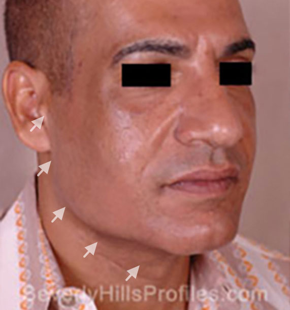 Mini Face Lift Procedure: Before Treatment Photo - male, oblique view, patient 15