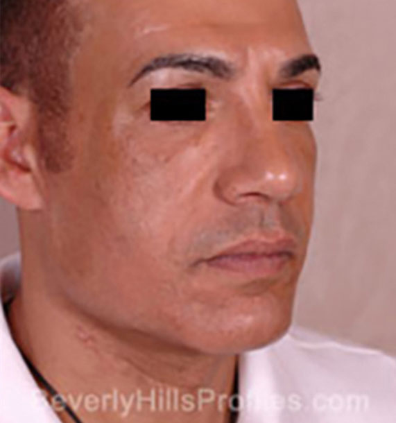 Mini Face Lift Procedure: After Treatment Photo - male, oblique view, patient 15