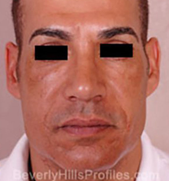 Mini Face Lift Procedure: After Treatment Photo - male, front view, patient 15