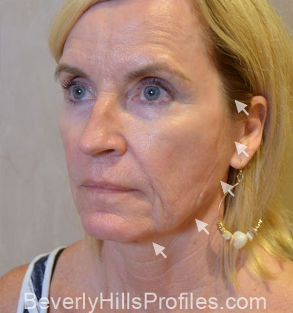 Mini Face Lift Procedure: Before Treatment Photo - female, oblique view, patient 16