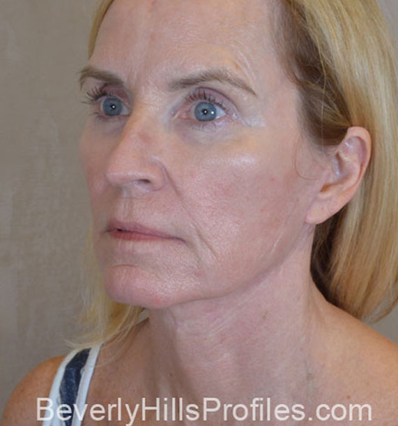 Mini Face Lift Procedure: After Treatment Photo - female, oblique view, patient 16