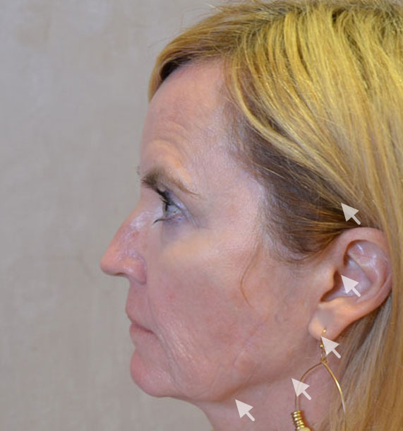 Mini Face Lift Procedure: Before Treatment Photo - female, left side view, patient 16