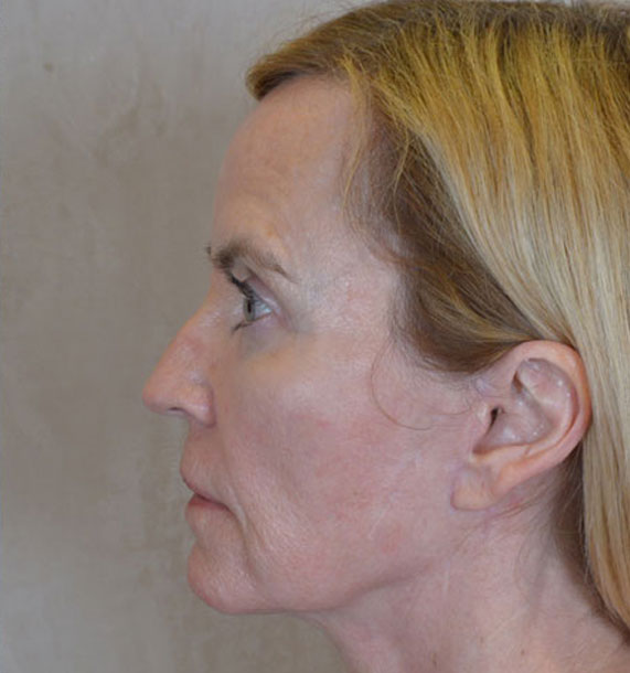 Mini Face Lift Procedure: After Treatment Photo - female, left side view, patient 16
