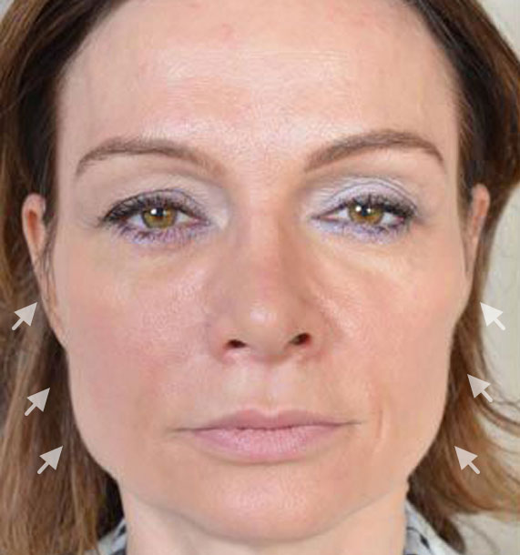 Mini Face Lift Procedure: Before Treatment Photo - female, front view, patient 12
