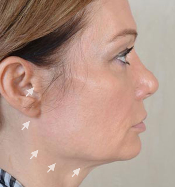 Mini Face Lift Procedure: Before Treatment Photo - female, right side view, patient 12