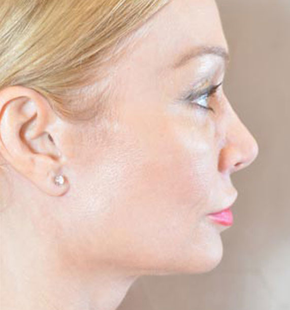 Mini Face Lift Procedure: After Treatment Photo - female, right side view, patient 12