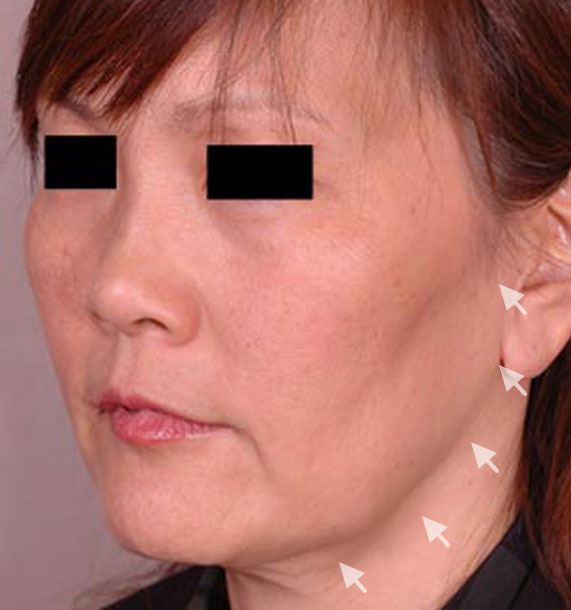 Mini Face Lift Procedure: Before Treatment Photo - female, oblique view, patient 13
