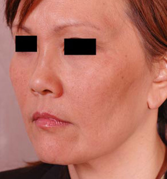 Mini Face Lift Procedure: After Treatment Photo - female, oblique view, patient 13
