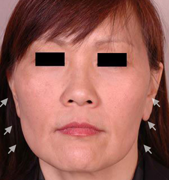Mini Face Lift Procedure: Before Treatment Photo - female, front view, patient 13