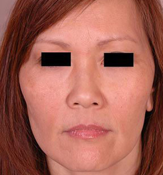 Mini Face Lift Procedure: After Treatment Photo - female, front view, patient 13