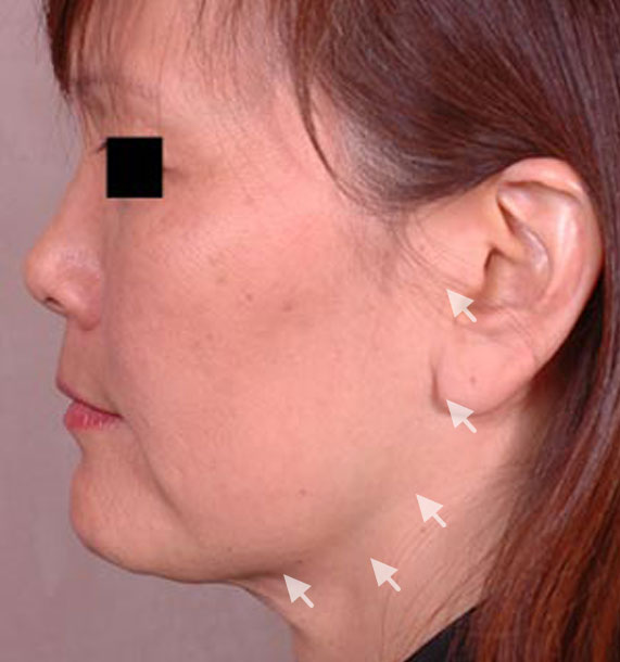 Mini Face Lift Procedure: Before Treatment Photo - female, left side view, patient 13