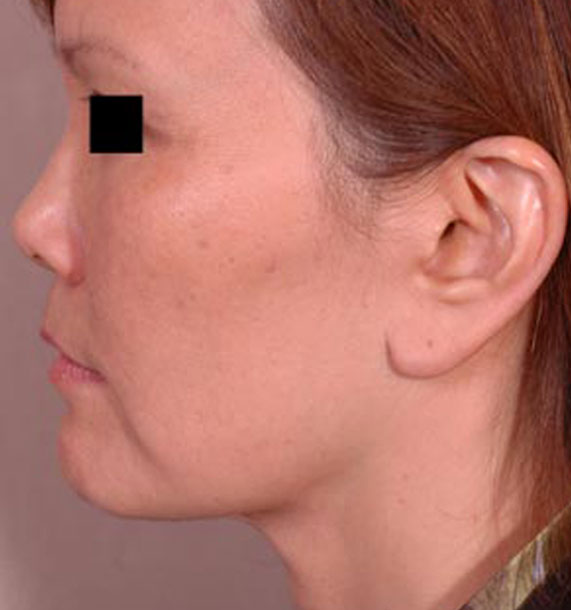 Mini Face Lift Procedure: After Treatment Photo - female, left side view, patient 13