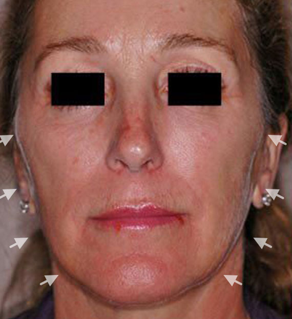 Facelift in my 60s - Before Treatment Photo - female, front view, patient 2