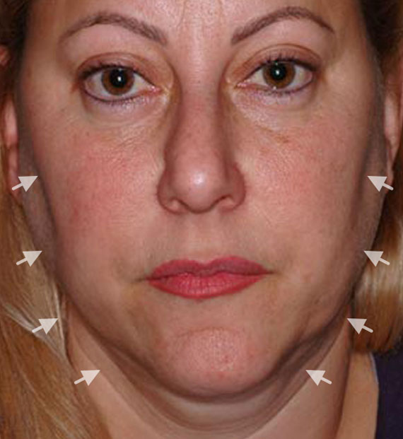 Facelift in my 60s - Before Treatment Photo - female, frontal view, patient 4
