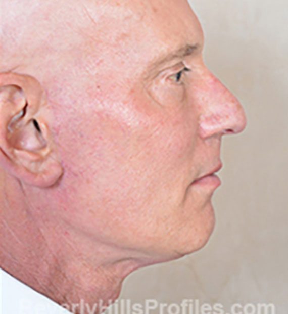 Facelift in my 60s - After Treatment Photo - male, right side view, patient 5