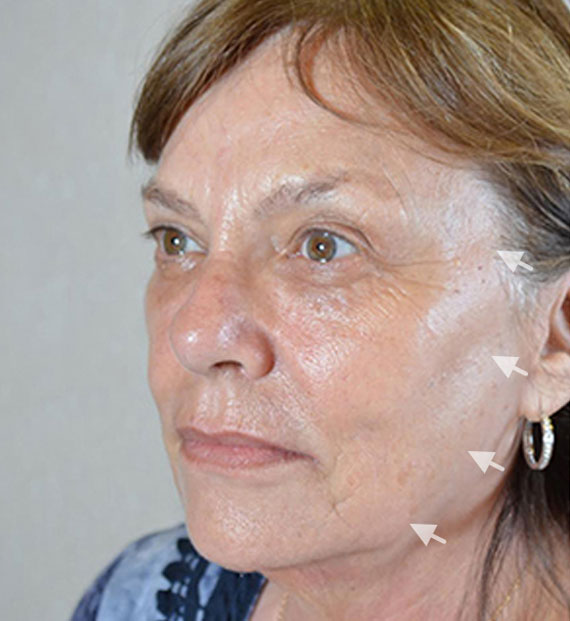 Facelift in my 60s - Before Treatment Photo - female, oblique view, patient 6