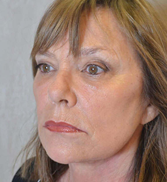 Facelift in my 60s - After Treatment Photo - female, oblique view, patient 6