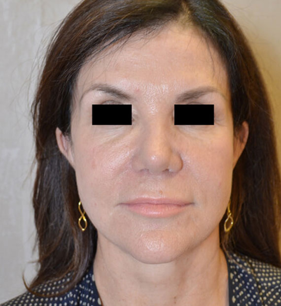 Facelift in my 60s - After Treatment Photo - female, front view, patient 7