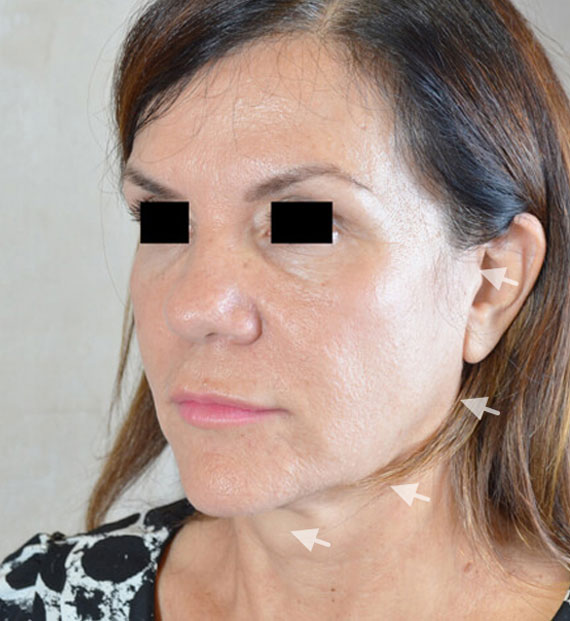 Facelift in my 60s - Before Treatment Photo - female, oblique view, patient 7