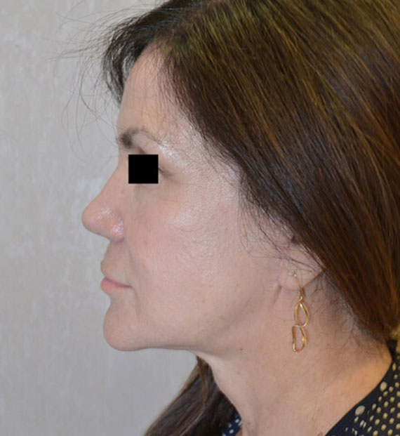 Facelift in my 60s - After Treatment Photo - female, left side view, patient 7