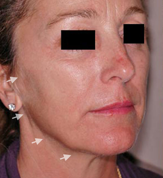 Facelift in my 60s - Before Treatment Photo - female, oblique view, patient 2