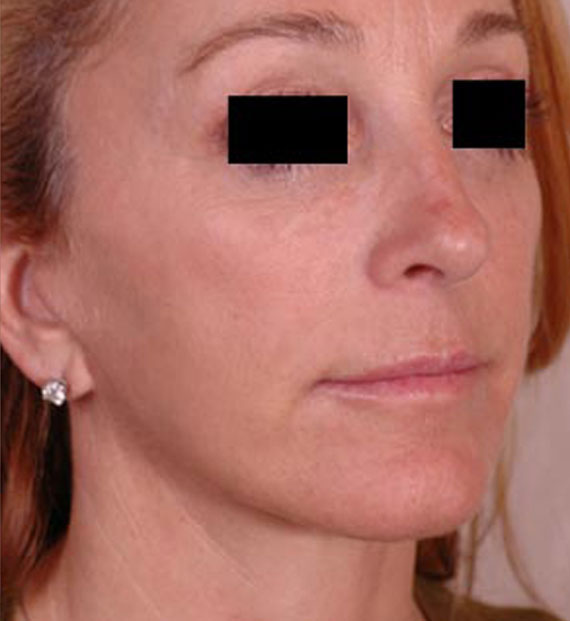 Facelift in my 60s - After Treatment Photo - female, oblique view, patient 2