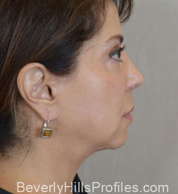 Facelift in my 60s - After Treatment Photo - female, right side view, patient 8