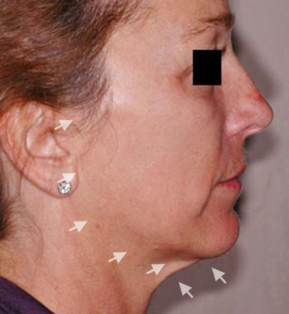 Facelift in my 60s - Before Treatment Photo - female, right side view, patient 2