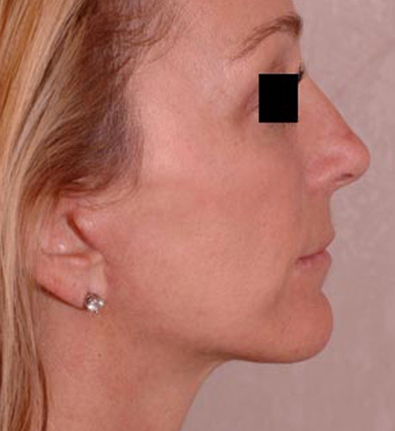 Facelift in my 60s - After Treatment Photo - female, right side view, patient 2