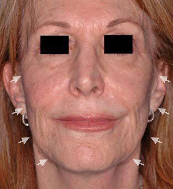 Facelift in my 60s - Before Treatment Photo - female, front view, patient 3