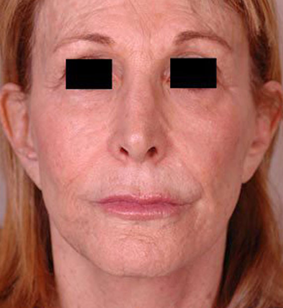 Facelift in my 60s - After Treatment Photo - female, front view, patient 3