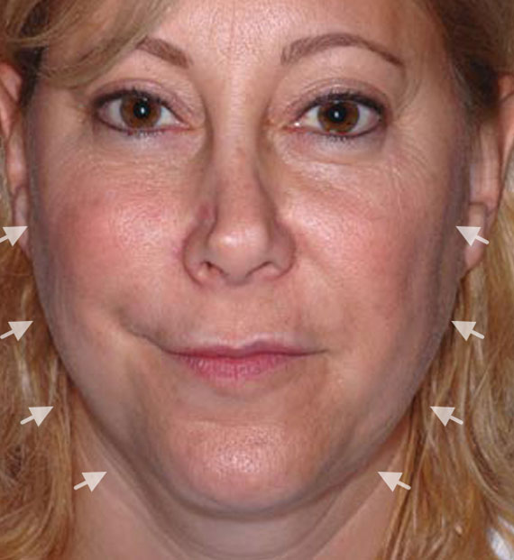 Facelift in my 60s - Before Treatment Photo - female, front view, patient 4