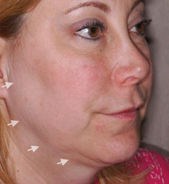 Facelift in my 60s - Before Treatment Photo - female, oblique view, patient 4